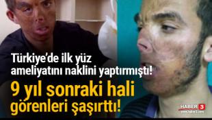 Türkiye'de ilk yüz nakli ameliyatını olmuştu! 9 yıl sonraki hali şaşırttı