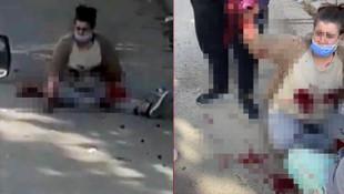 Eski karısını sokak ortasında defalarca bıçakladı!