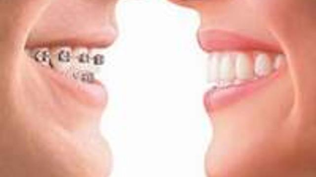 Dişleriniz çarpık mı?