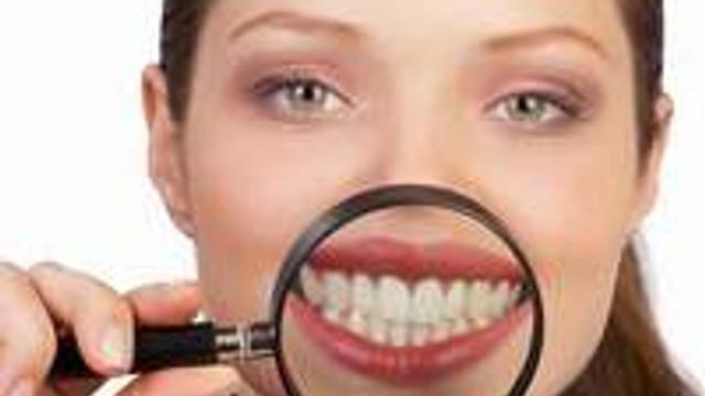 Diş teli tedavisine başlamak için 10 neden