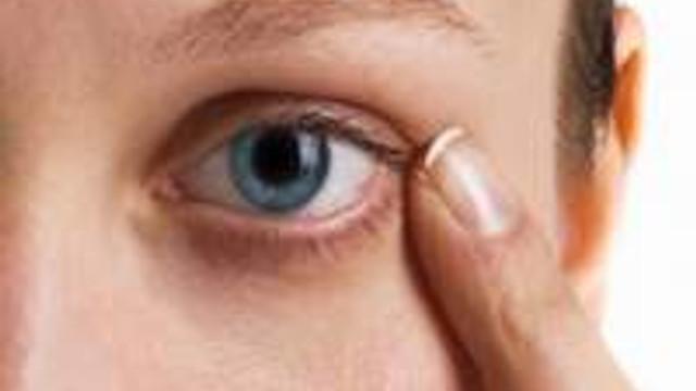 Göz seyirmesi nedir neden olur?