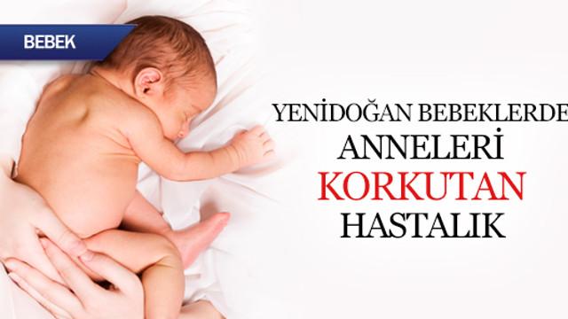Yenidoğan bebekte anneleri korkutan hastalık