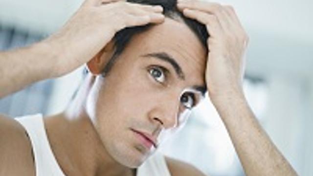 Saç ekiminde yanlış bilinenler