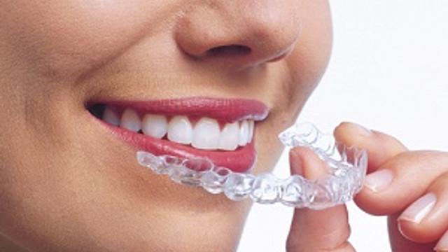 Diş teli kabusunuz olmasın