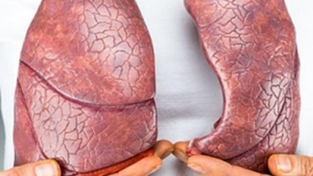 D vitamini tüberküloz riskini azaltıyor