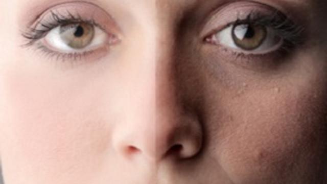 Sağlıklı bir cilde sahip olmanın ipuçları