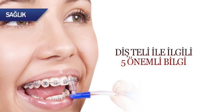 Diş teli ile ilgili 5 önemli bilgi