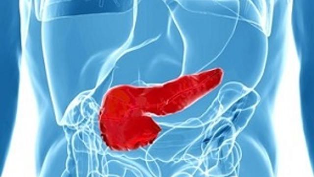 Sinsice ilerleyen hastalık: Pankreas kanseri
