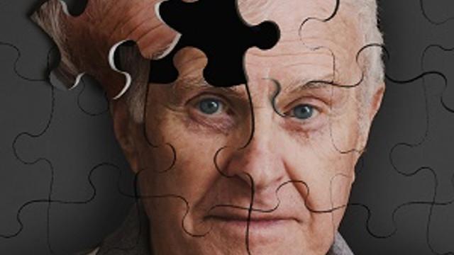 Unutkanlıklar alzheimer belirtisi olabilir