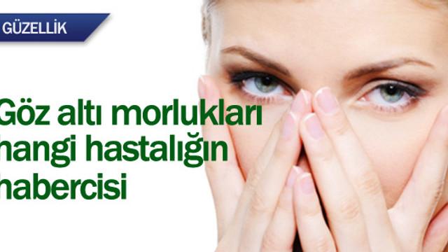 Göz altı morlukları hangi hastalığın habercisi