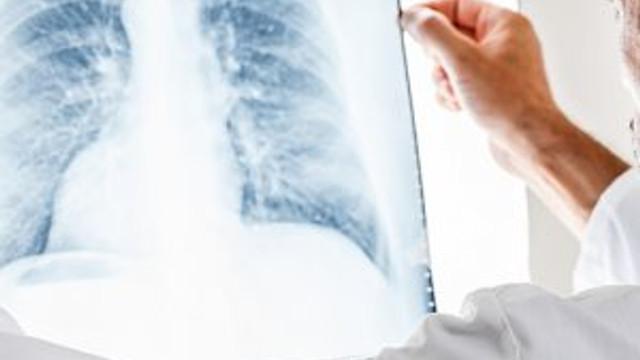 Devlet hastanesinden akciğer kanseri için yeni umut