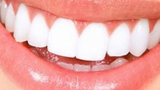 Güldüğünüzde diş etiniz görünüyorsa dikkat !