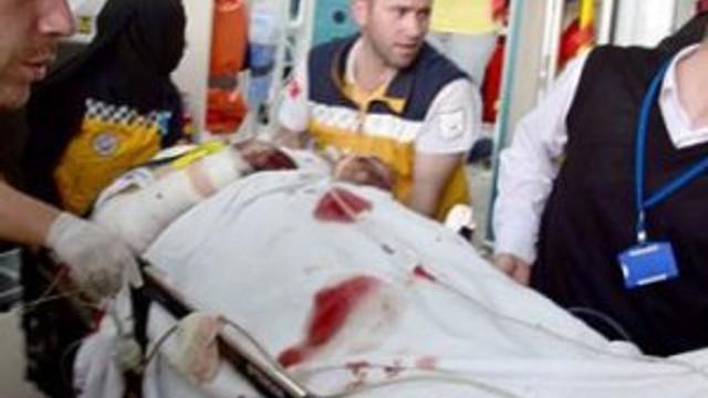 Giresun'da teröristlerin mayını patladı: 1 yaralı