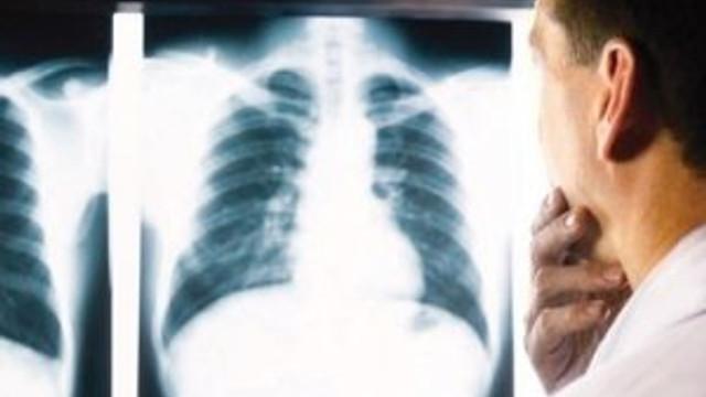Hastanede vahim iddia: Çalışanlar kanser oldu !