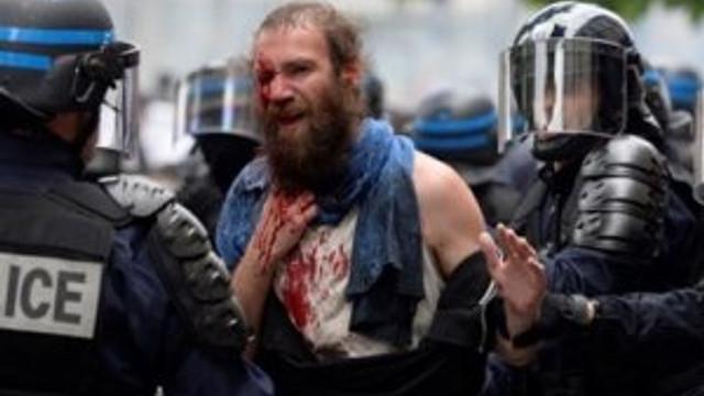 Fransa'da göstericinin gözüne gaz kapsülü geldi