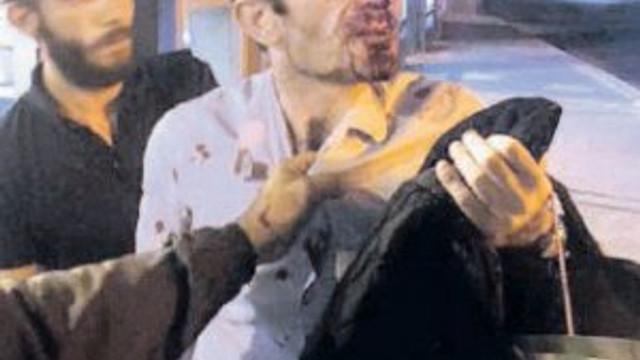 Metrobüs sapığına ibretlik ceza