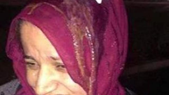 ABD'de başörtülü kadına yumurtalı saldırı