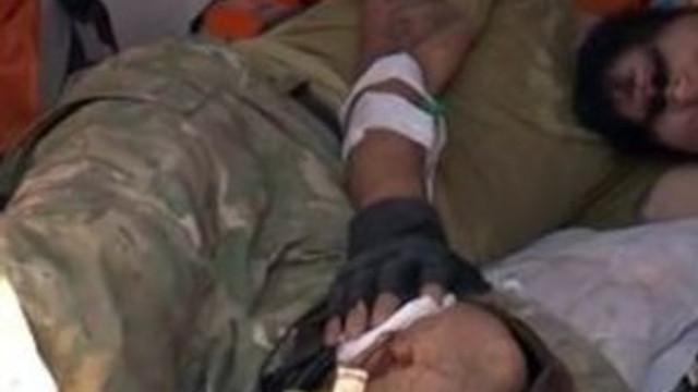 Yaralı 3 ÖSO mensubu Türkiye'ye getirildi