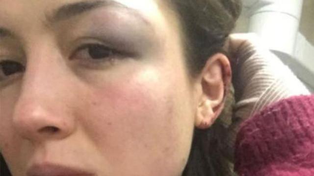 Genç kadından şoke eden iddia: ''Demir çubukla dövdü''