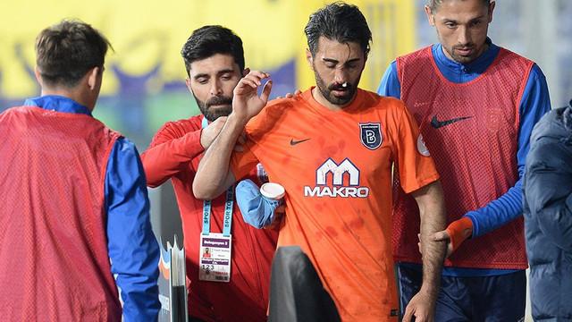 Mahmut Tekdemir'in burnu kırıldı