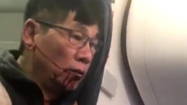 Dayak yedi, uçaktan atıldı ama bakın sonra ne yaptı ?