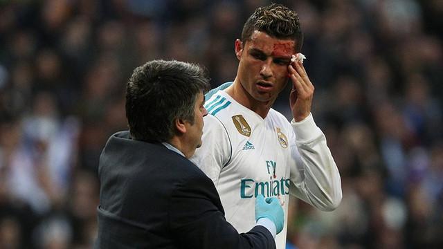 Cristiano Ronaldo kanlar içinde kaldı !
