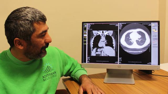 Kalp, karaciğer, dalak ve midesi olması gereken yerde değil