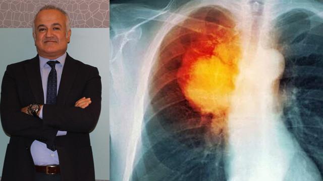 Bacaklarda şişme ve ağrı akciğer kanseri belirtisi olabilir