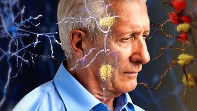Bilim insanları Alzheimer'a ''genetik çözüm'' buldu !