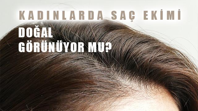 Kadınlarda saç ekimi doğal görünür mü?