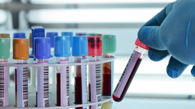 Türkiye'nin korkutan Hepatit B gerçeği: Haberimiz yok !