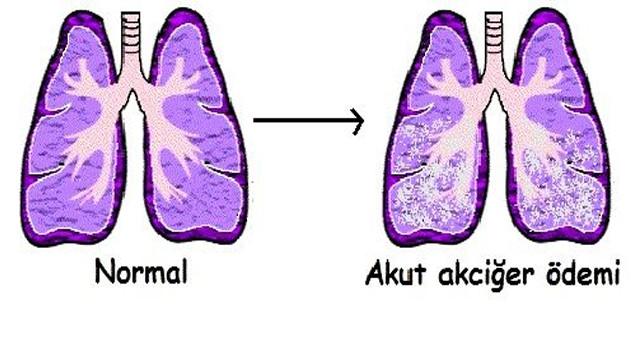 Akciğer Ödemi Nedenleri