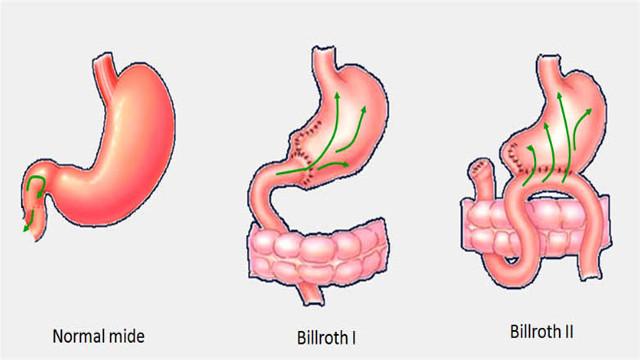 Alkalen Reflü Gastrit Belirtileri