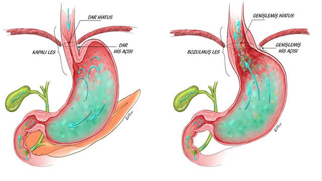 Alkalen Reflü Gastrit Nedenleri