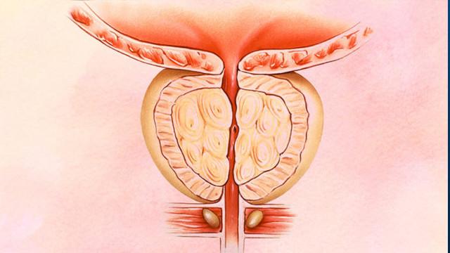 prostat iltihabının belirtileri nedir