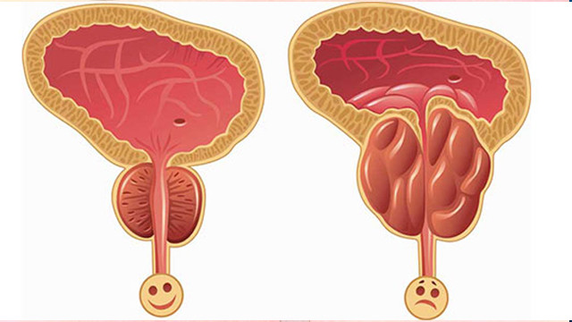 Prostatit (Prostat İltihabı) Nedenleri