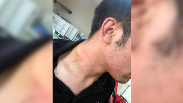 AK Partili vekil CHP'li gencin boğazını sıktı