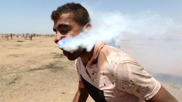 Ağzına gaz bombası atılan gençten haber var