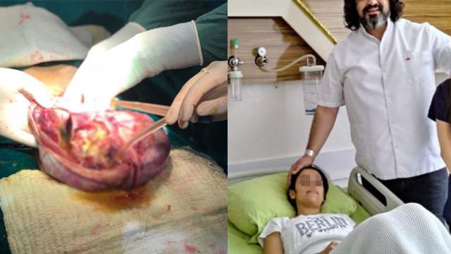 Karın ağrısıyla gittiği hastanede, karnından çıkan doktorları da şoke etti