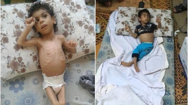 Açlıktan kedi eti yiyen Suriyeli çocuk Türkiye'de tedavi altında