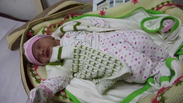 Doktorları şaşkına çeviren Zeynep Bebek...