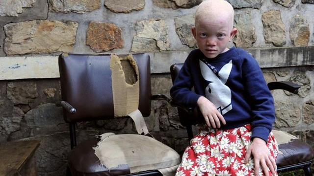 Albino çocuğun elini kestiler ! Sebebi tüyler ürpertiyor