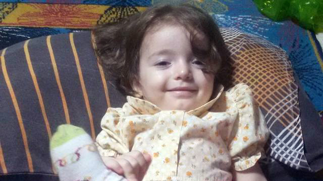 Esma bebek yaşam savaşını kaybetti