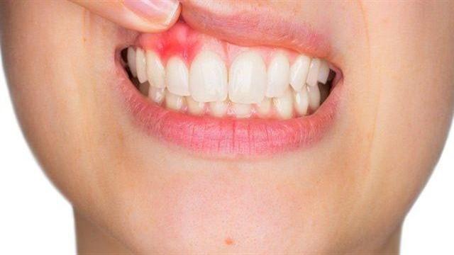 Diş Eti Ağrısı Belirtileri