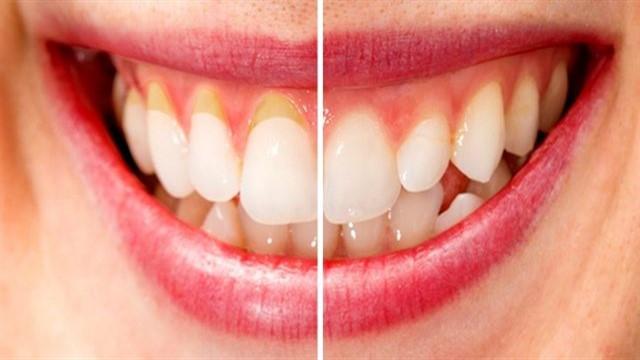 Diş Eti Ağrısı Nedenleri