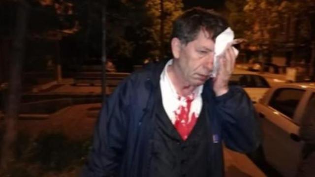 Gazeteci yazara evinin önünde saldırı !