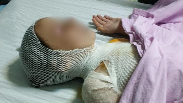 8 yaşındaki Elif'in üzerine süt tenceresi döküldü