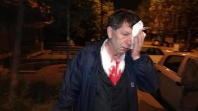 Saldırıya uğrayan gazeteci Demirağ'dan ilk açıklama