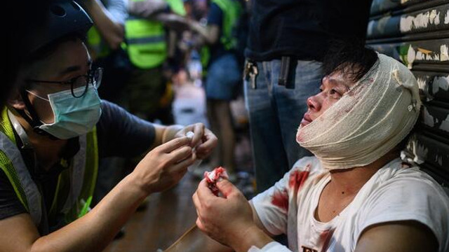 Tehlikeli gerilim ! Eylemcilere sopalarla saldırdılar
