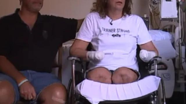 Köpeğinden bulaşan bakteri yüzünden kol ve bacaklarını kaybetti